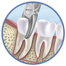 Tooth-Extraction-Tooth-Removal